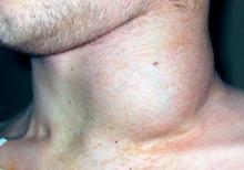 Увеличение шейных лимфоузлов при злокачественной лимфоме